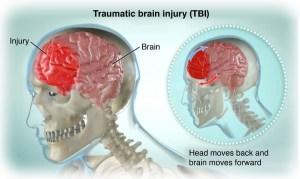 TBI treatment in West Palm Beach Florda