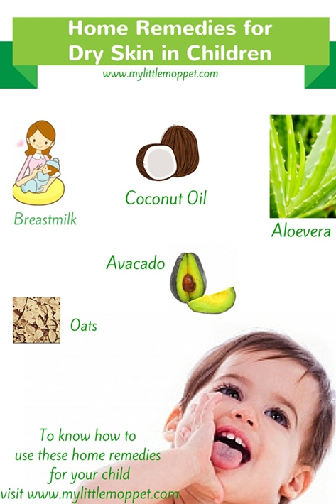 5 amazing home remedies for dry skin in children my little moppet home remedies for dry skin in children solutioingenieria Choice Image