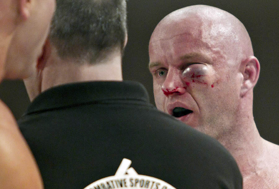 EDMONTON, AB: FEBRUARY 25, 2011Dwayne Lewis talks with the ref after the fight was stopped due to the swelling on his eye after fighting Ryan Jimmo during the main card at MFC Supremacy 28 at the River Cree Resort and Casino February 25, 2011. Ryan Jimmo won the fight. (Jason Franson Edmonton Journal.) For Paul Cashman.