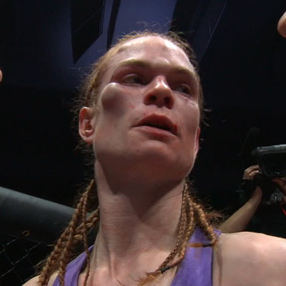Peggy Morgan's cheek bone swells during a fight with Irene Aldana at Invicta FC 8.