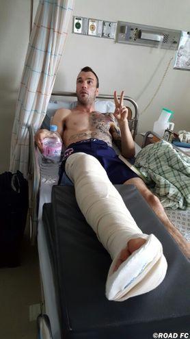 George Roop breaks leg in Seoul, South Korea.