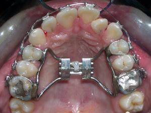 上顎擴張器術後