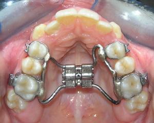 上顎擴張器