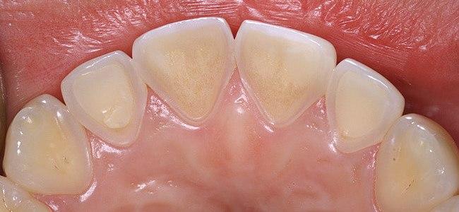 琺瑯質流失的原因與預防-牙齒酸蝕篇