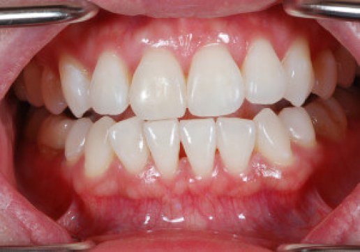 After tooth bleaching