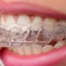 隱形矯正可以不用拔牙?談談隱形矯正3種創造空間的方法