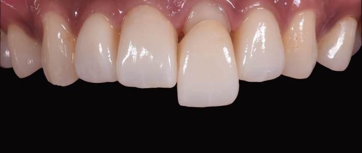 門牙樹脂補牙染色與蛀牙後的貼片重建