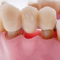 植牙會比做假牙好嗎? 關於選擇固定式牙橋或人工植牙的幾個建議