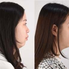 大部分的開咬是不需要動手術的,開咬的成因與矯正案例介紹