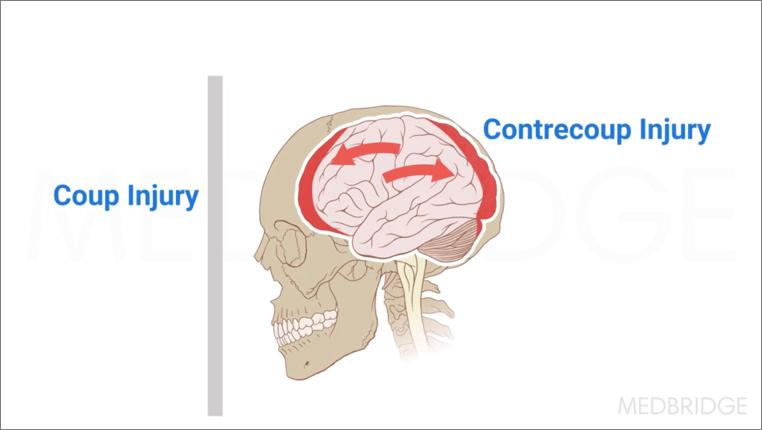 brain-injury
