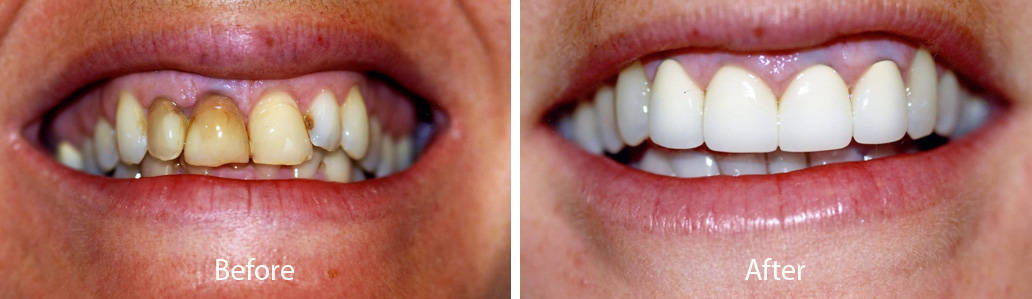 Dental before and after photos - Smiles By Design in Fayetteville
