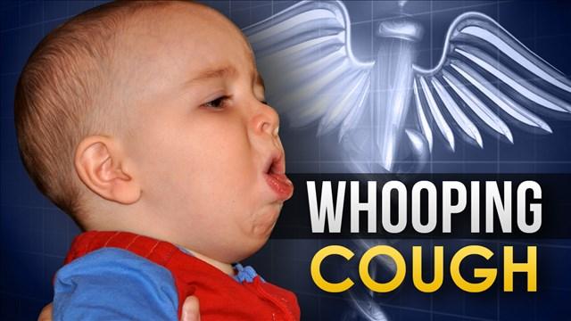 Whooping Cough_1509392702570.jpg