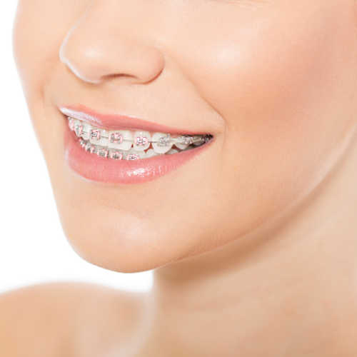 difference in functional and traditional orthodontics