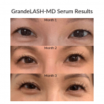 Review:  GrandeLASH-MD serum