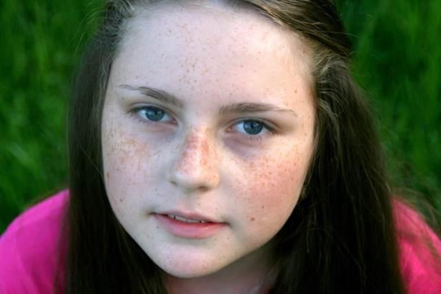 freckle-face