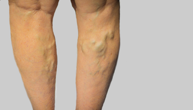 Vein pain may lead to Varicose veins