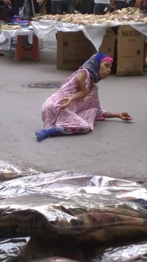 بالصور.. شاهد كيف تتحايل هذه السيدة على المارة لاستجداء تعاطفهم