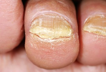 toenail fungi facts
