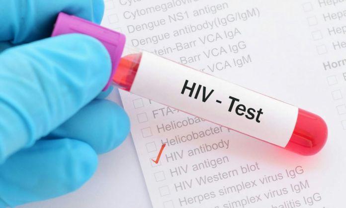 FG approves new test kit for HIV