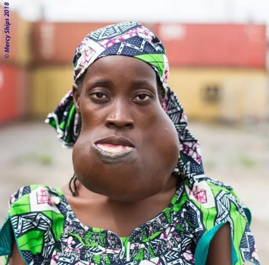 Lady Who Lived With A Disfigured Face For Nearly 10 Years Gets New Life After Surgery (Photos)