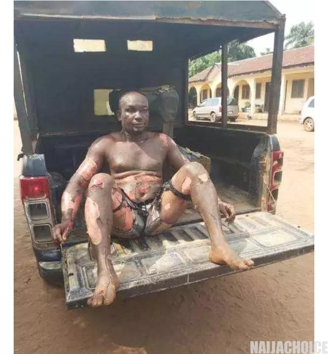 Son Stabs His Mother In Imo. Set Himself On Fire  (Disturbing Photos)