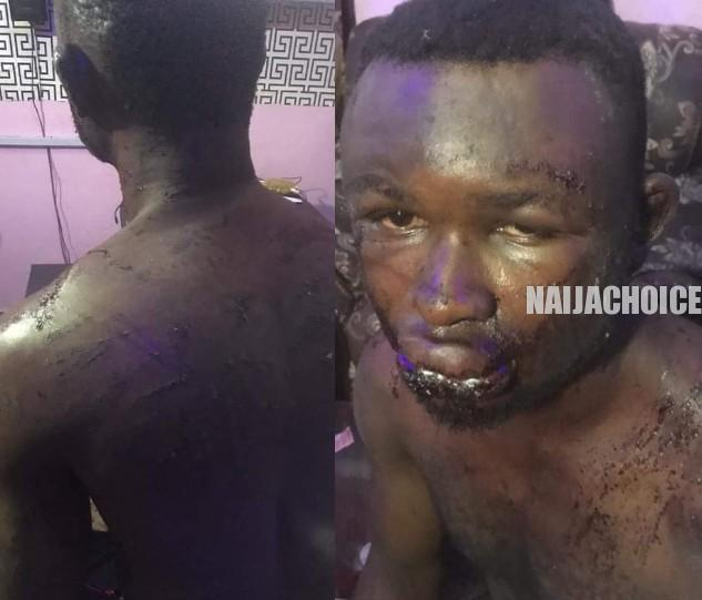 Man Beaten By Soldiers Who Mistook Him For Someone Else In Rivers (Pix)