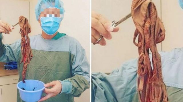 End Time! What Doctor Found Inside Someone's Intestine Will Shock You (Photo)