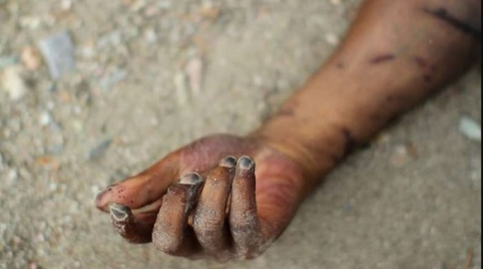 dead hand 700x390 - Horror: How Bread Factory Engine Ripped Open A Young Lady's Stomach In Lagos