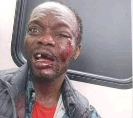 Anambra Bus Preacher Beaten To Coma After Condoms Fall From Bible (Photo)