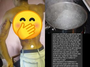 Lady Pours Hot Water On Her Brother For Stopping Her From Dating A Married Man – [Photos]