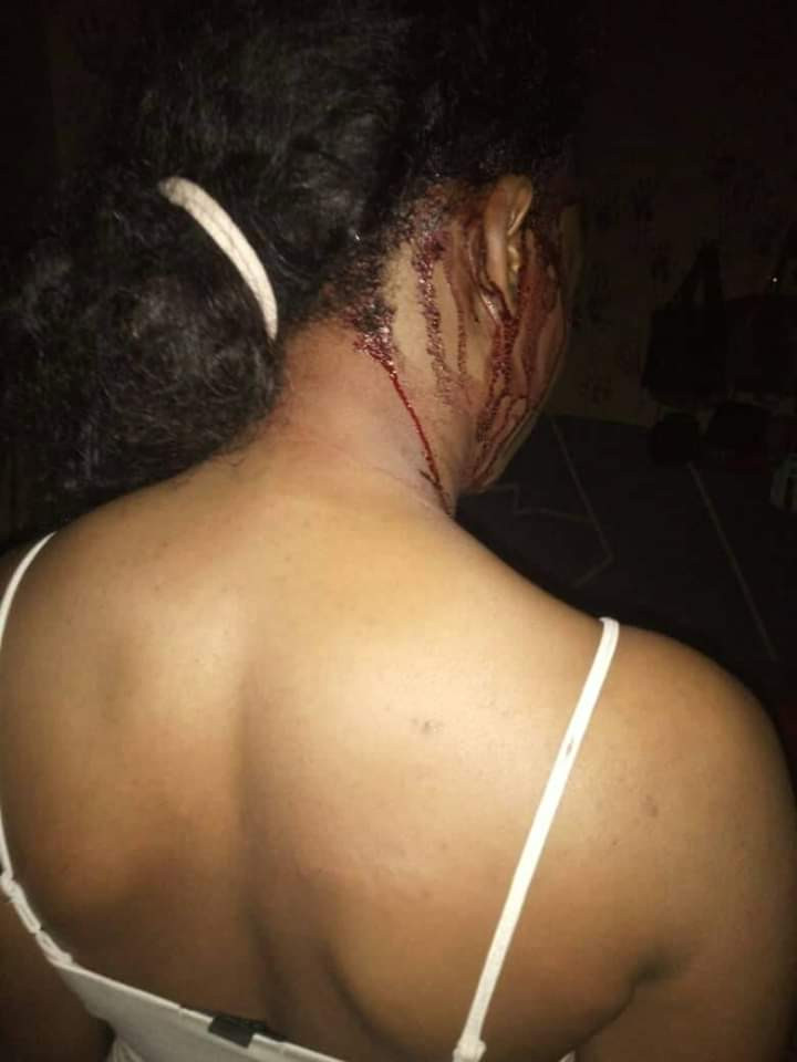Photos: Students of Plateau State University attacked in their apartments by unknown masked persons