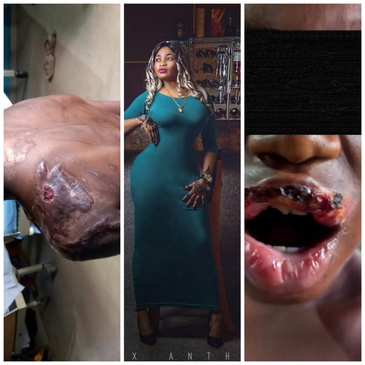 10-year-old girl allegedly abused by madam suffers extensive damage to her oesophagus and stomach; Abia First Lady to fly her to Abuja for possible surgery