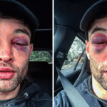 English Boxer Shows Off Gruesome Black Eyes After Defeating His Bitter Rival In A Fierce Boxing Clash