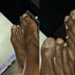 Worlds Fastest Man, Usian Bolt Causes Commotion After Posting This Photo Of His Feet