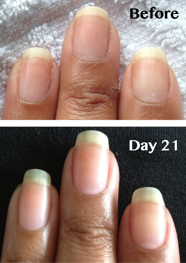 Ling Nails Nailcarehq Becky S Before And After