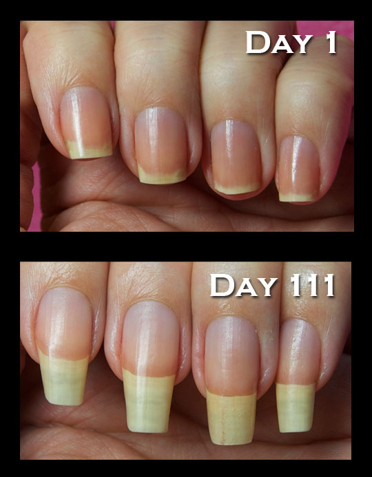 Removal Gel Nail Damage1 25