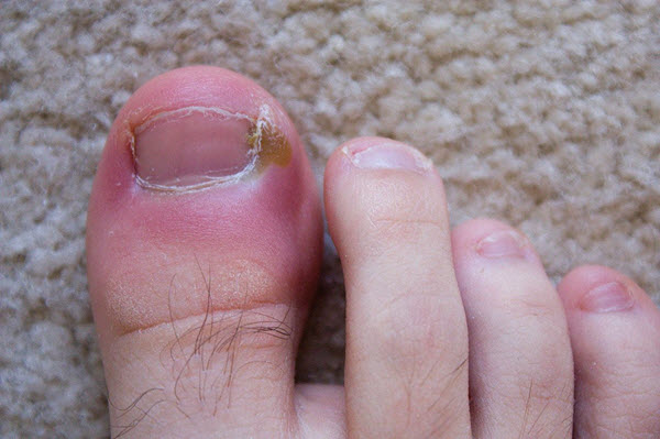 toenail bacterial infection