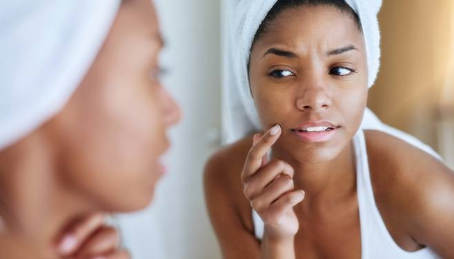 How To Get Rid of Face Pimples Naturally