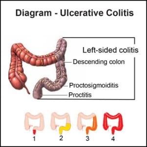 I Struggled With Ulcerative Colitis During Pregnancy | My