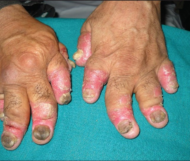 The Pattern Of Psoriatic Arthritis In Kashmir A  Year Prospective Study Rather S Nisa N Arif T North Am J Med Sci