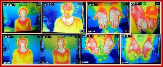 サーモグラフィーによる施術前、施術後の体温上昇の証拠写真