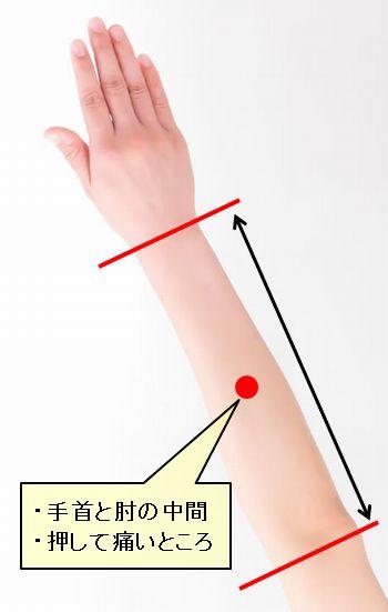 寝違いに効く腕のツボの位置を記した写真