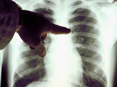Carcinoma_polmonare