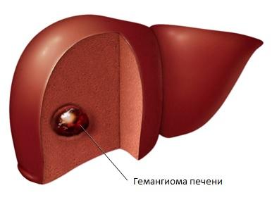 Как лечить гемангиому печени?   Народная медицина ...