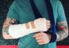 Ed Sheeran bicycle accident