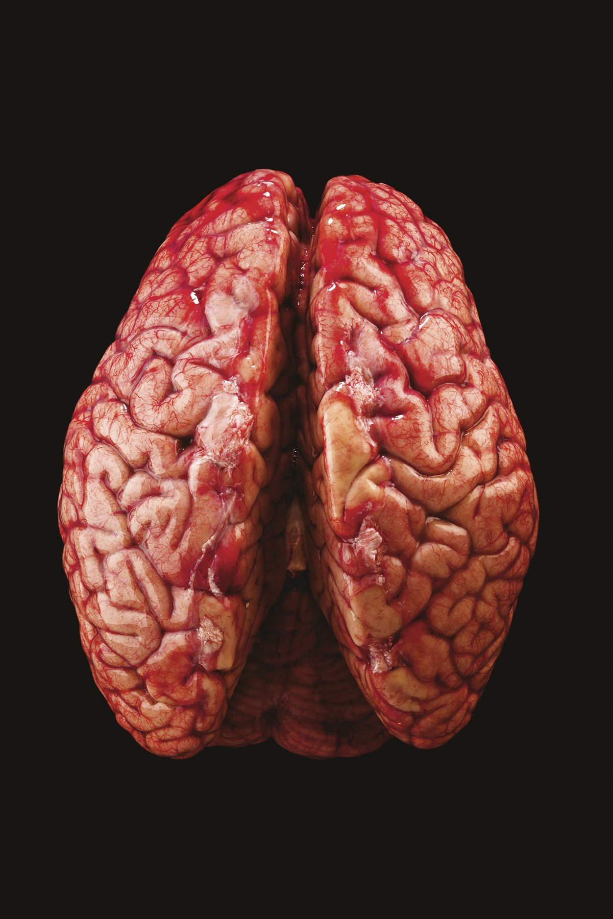 Preparación de un cerebro humano a cargo del Instituto Allen para la Ciencia del Cerebro
