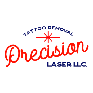 precision laser tattoo removal easton pa