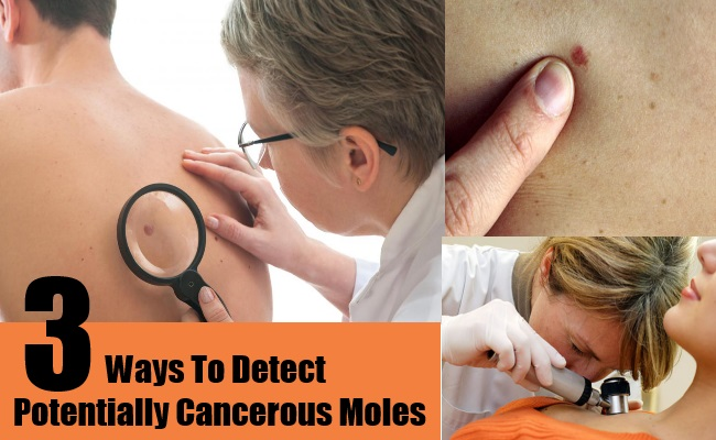 Ways To Detect Potentially Cancerous Moles
