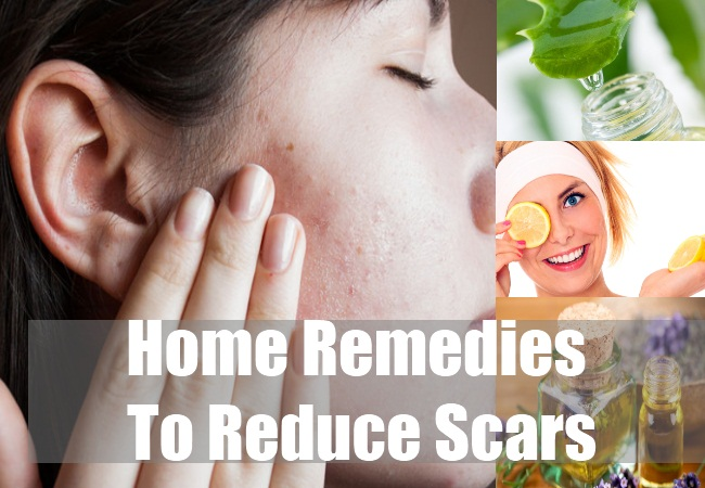 Home Remedies To Reduce Scars