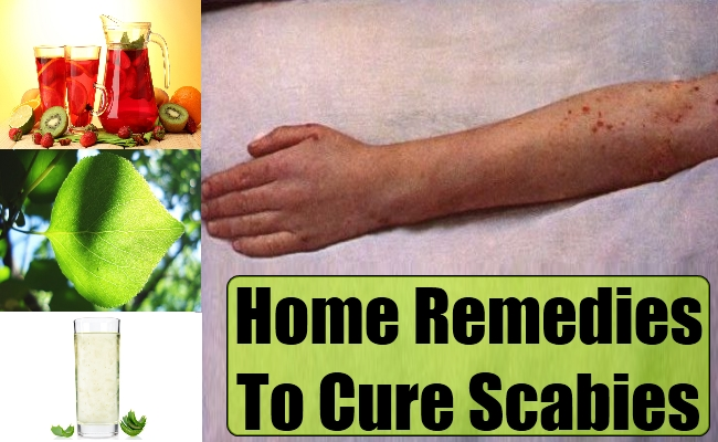 Home Remedies to Treat Scabies - How to Cure Scabies - Scabies